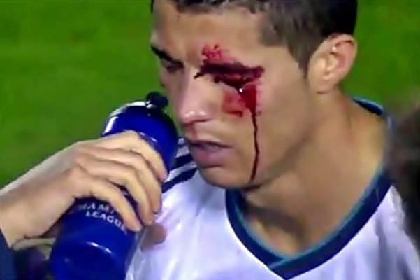 Травма футбол